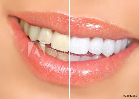 teeth whitening dentist north wales pa 19454