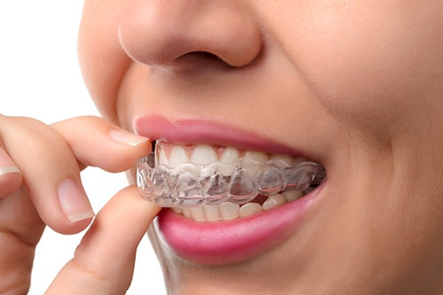 Invisalign dentist north wales pa 19454