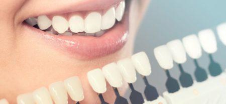 Five Types of Cosmetic Dental Procedures